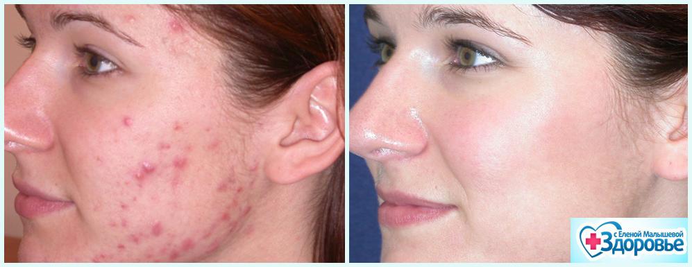 Морковная маска Кэррот Маск Хендель (Carrot Mask Handel): Чистая кожа за 2 месяца!
