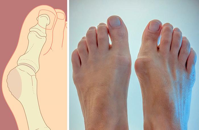 Как избавится от шишке на ноге в домашних условиях